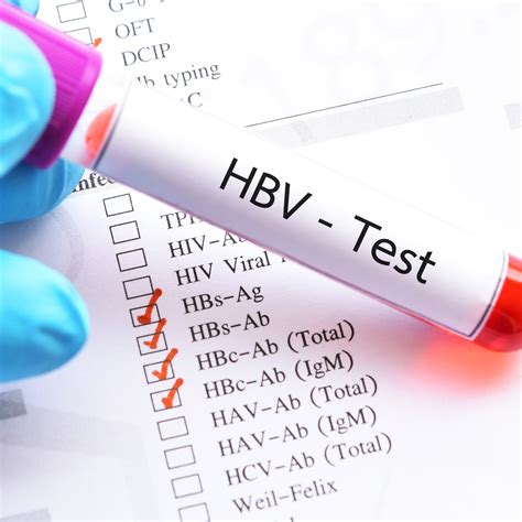 Do You Know the Differences Between Hepatitis A, B and C